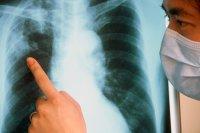 Что мы знаем о туберкулезе?