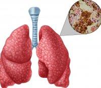 Памятка Что нужно знать о туберкулёзе